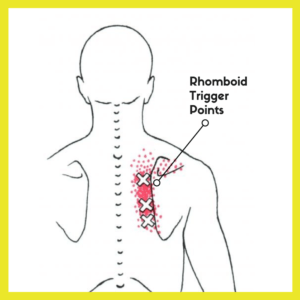 Rhomboid Trigger Points
